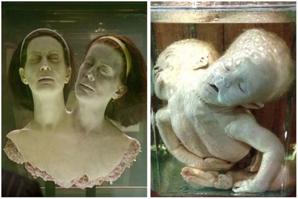 American Horror Story's Morbidity Museum Based on True ...