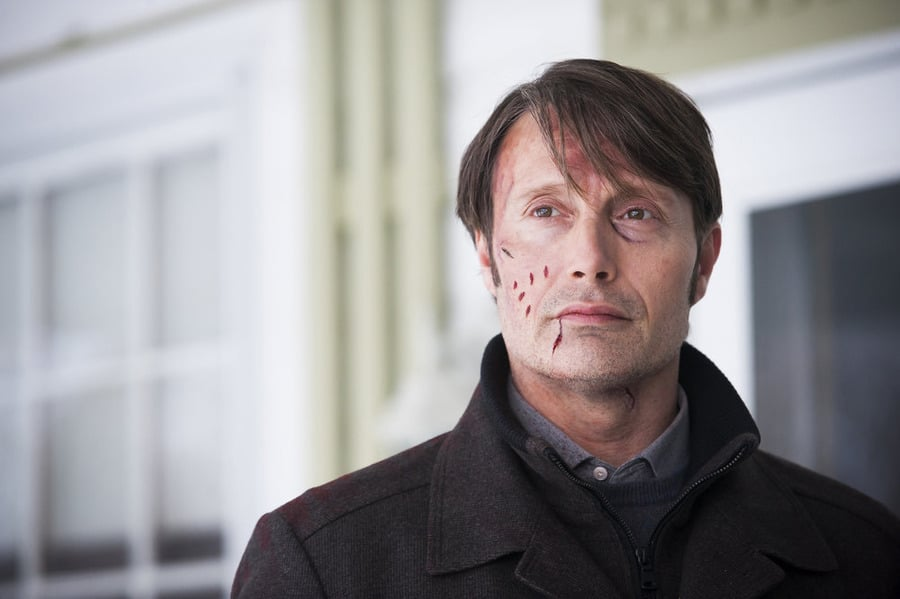 NUP 166959 0150 - Chew on These Stills and Preview of Hannibal Episode 3.07 - Digestivo
