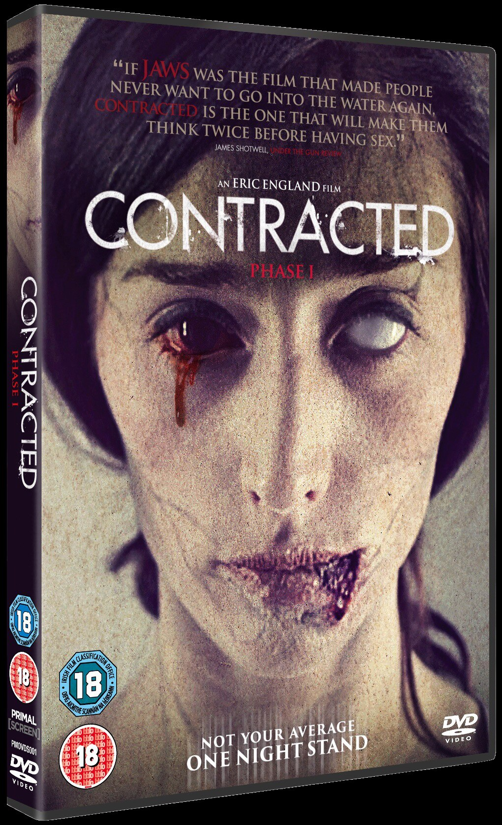 Contracted Phase I Image
