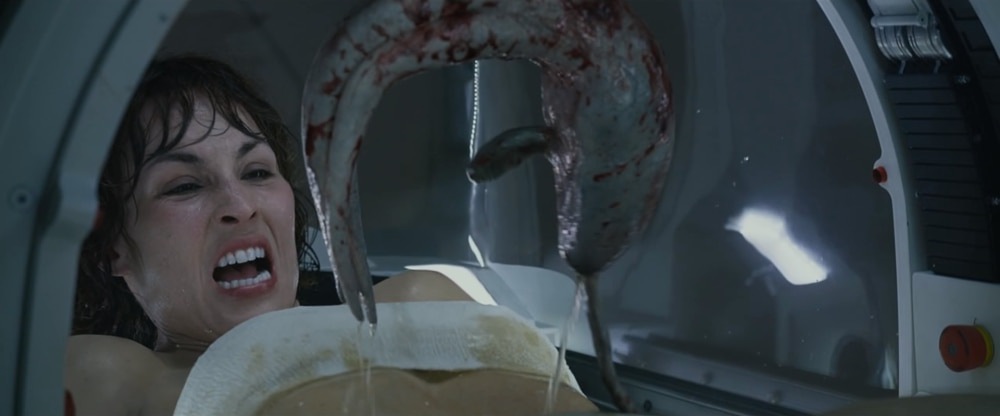The C Section scene in Prometheus